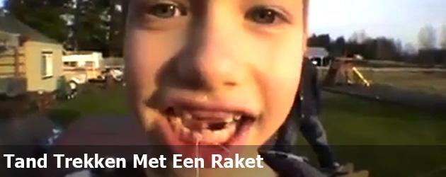 Tand Trekken Met Een Raket