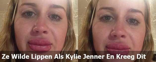 Ze Wilde De Lippen Van Kylie Jenner En Kreeg Dit
